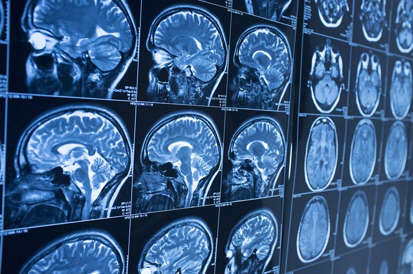 Giornata mondiale Alzheimer, test gratuiti a Roma