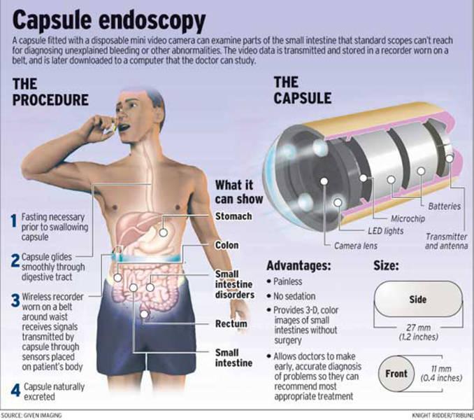 capsula_endoscopica